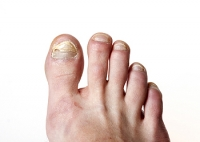 Medical Conditions May Precede Developing Toenail Fungus