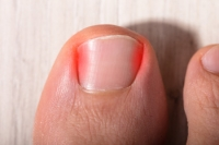 What to Do When You Have an Ingrown Toenail